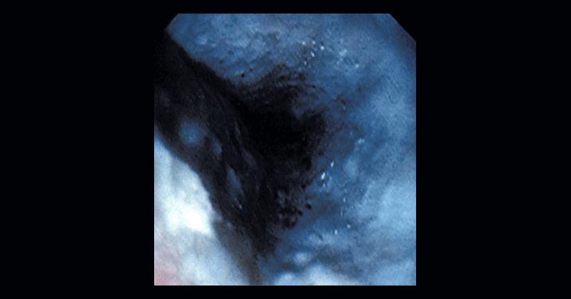 Клинические стадии ожога пищевода thumbnail