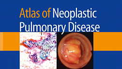 Atlas of Neoplastic Pulmonary Disease Pathology Cytology Endoscopy and Radiology