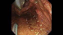 Эндоскопическая диссекция подслизистой оболочки при поверхностном раке глотки с использованием трансназального эндоскопа